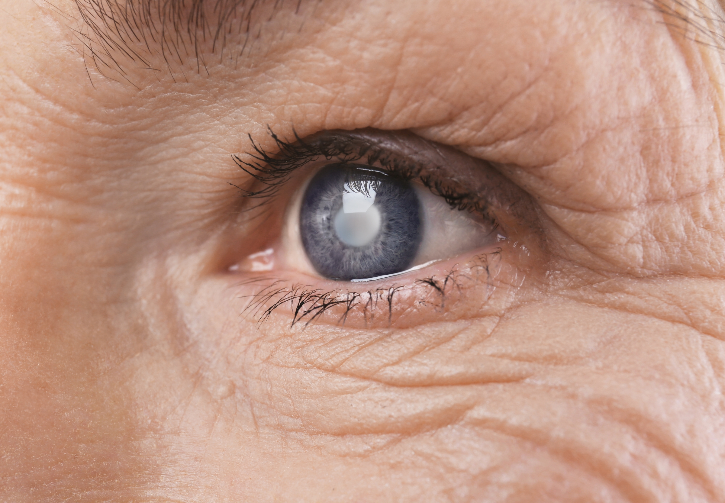 An Older Man with Cataract