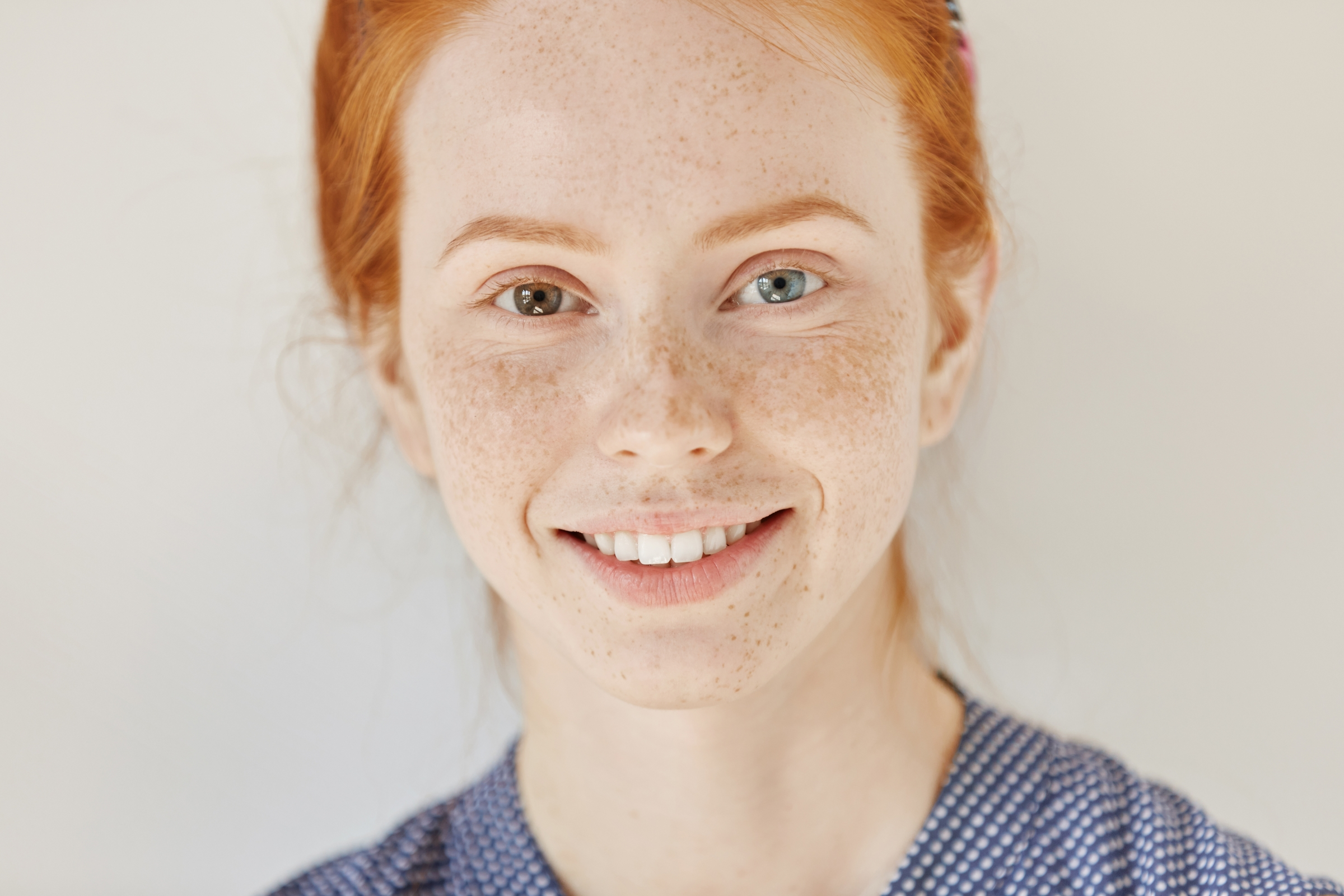 Close-up of smiling redhead with heterochromia - two different colored eyes