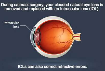 Intraocular lens (IOL) implants for cataract surgery with our Poughkeepsie, Fishkill eye surgeons.