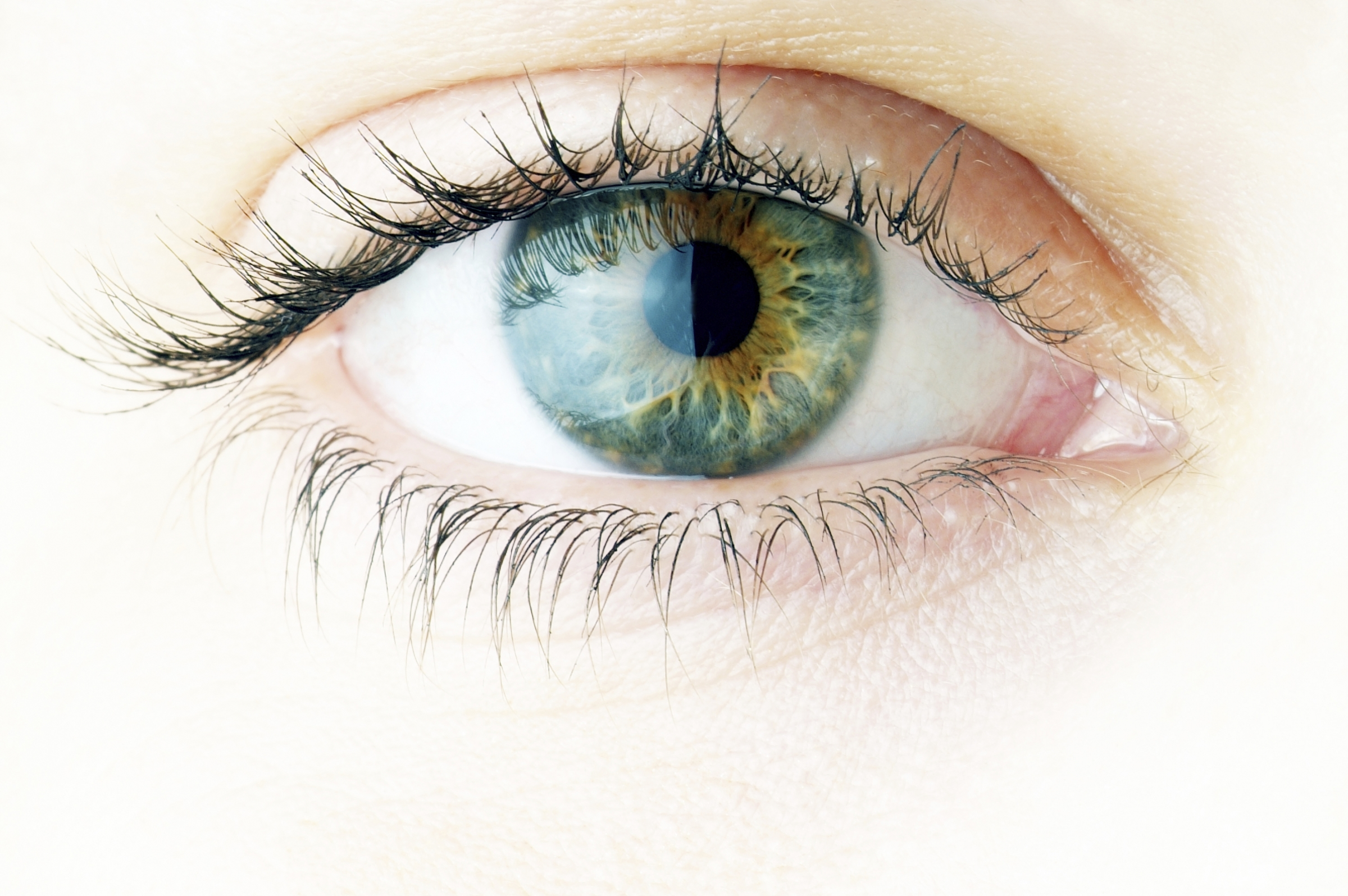 Poughkeepsie | What is LASIK Eye Surgery