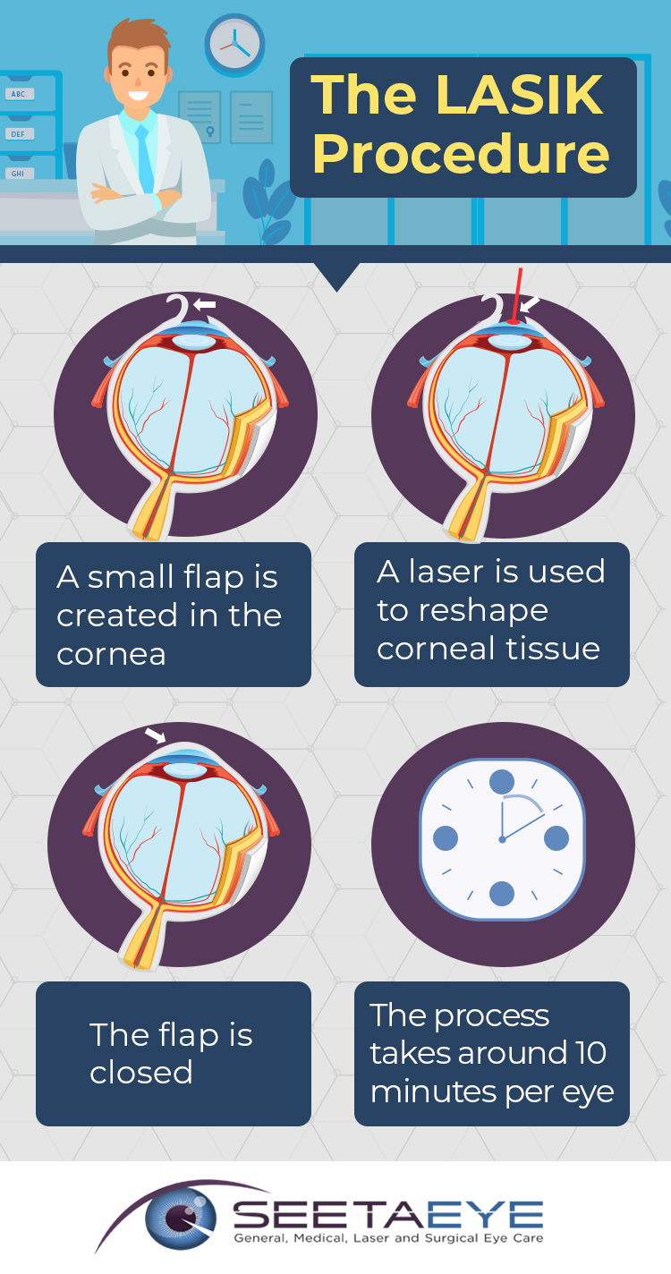 An Infographic Exploring the LASIK Procedure at Seeta Eye Centers in Poughkeepsie and Fishkill