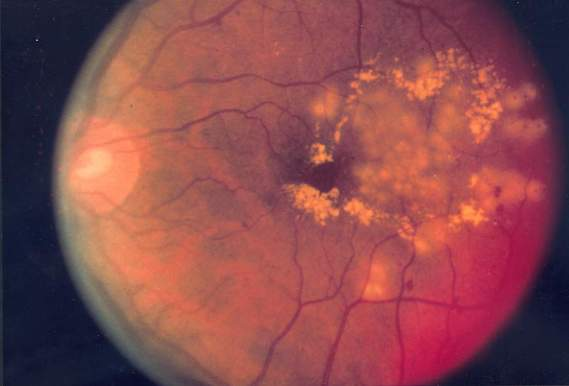 Signs you May Have Diabetic Retinopathy | Poughkeepsie
